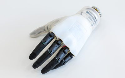 Hannes, the most amazing new generation prosthetic hand